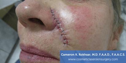 Woman's face, After Mohs Surgery Treatment - cheek, oblique view, patient 1