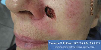 Woman's face, Before Mohs Surgery Treatment - cheek, oblique view, patient 1