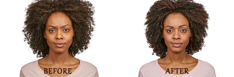 Jeuveau Treatment: Before and After Treatment Photo - patient 1