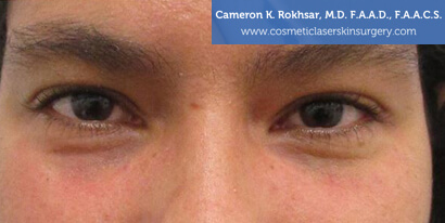 Woman's eyes, After Fillers Treatment - front view, patient 1