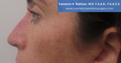 Woman's face, After Non Surgical Nosejob Treatment - left side view, patient 1