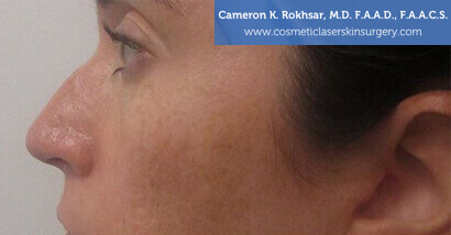 Woman's face, Before Non Surgical Nosejob Treatment - left side view, patient 1