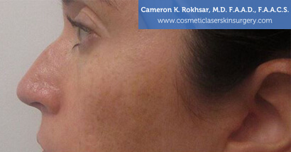 Woman's face, Before Non Surgical Nosejob Treatment - left side view, patient 1