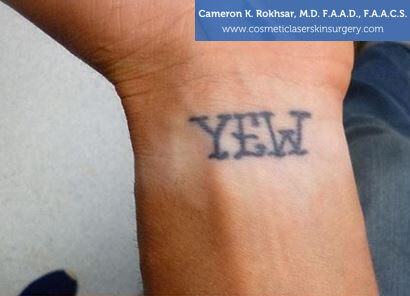 Man's hand, Before Tattoo Removal Treatment - front view, patient 1