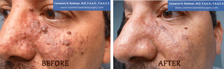 Birth Mark Removal: Before and After Treatment Photo - patient 2