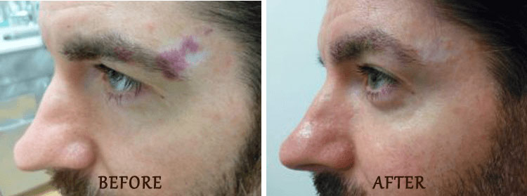 Birth Mark Removal: Before and After Treatment Photo - patient 3